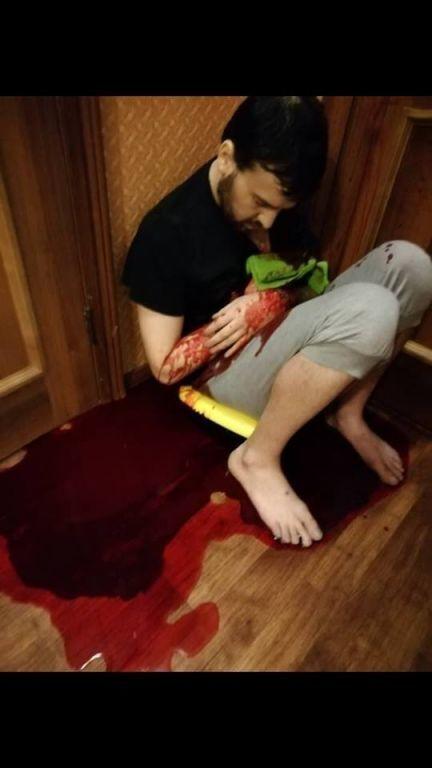 Росіянка вдарила ножем колишнього чоловіка і зробила з ним селфі. Страшна історія і фото 18+