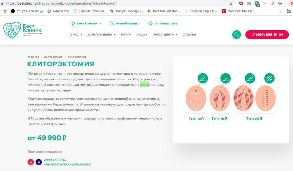 df7e7098b83e Женское обрезание вызвало скандал в России: что там случилось и кто