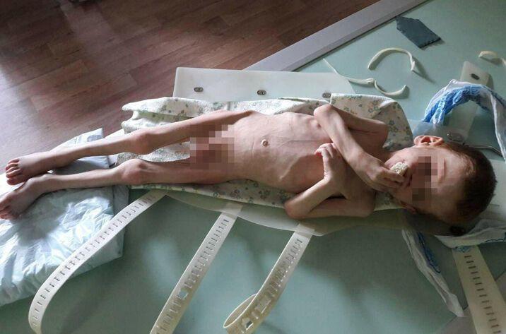 Под Кропивницким депутат заморил голодом маленького ребенка: жуткие подробности, фото и видео