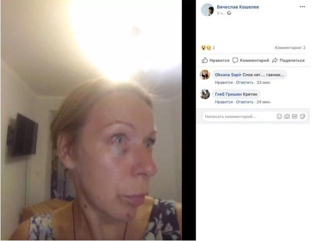Актор забороненого в Україні серіалу побив колишню дружину і похвалився у Facebook: опубліковані фото