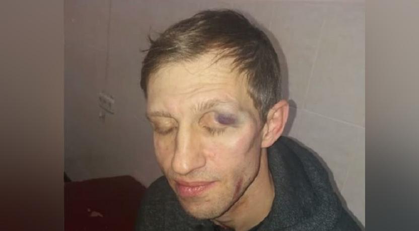Володимир Доценко побив вчителя: як він за це відповість і фото наслідків