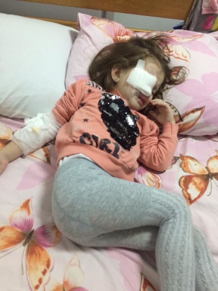 Пострадавший ребенок после операции