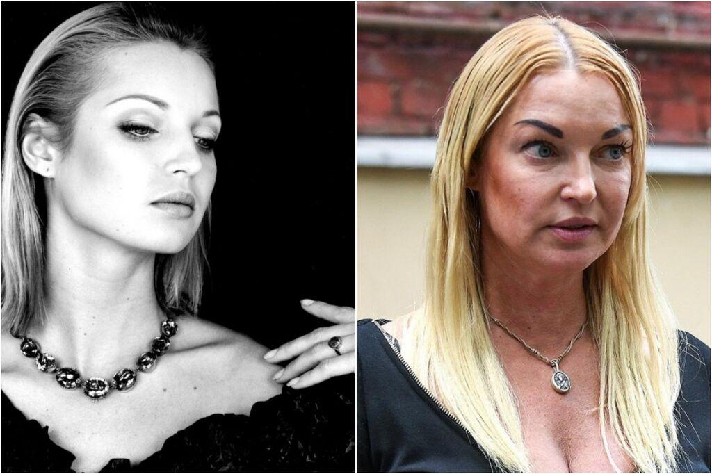 Почему Волочкова пьет и как алкоголь губит ее жизнь и внешность, наглядные фото