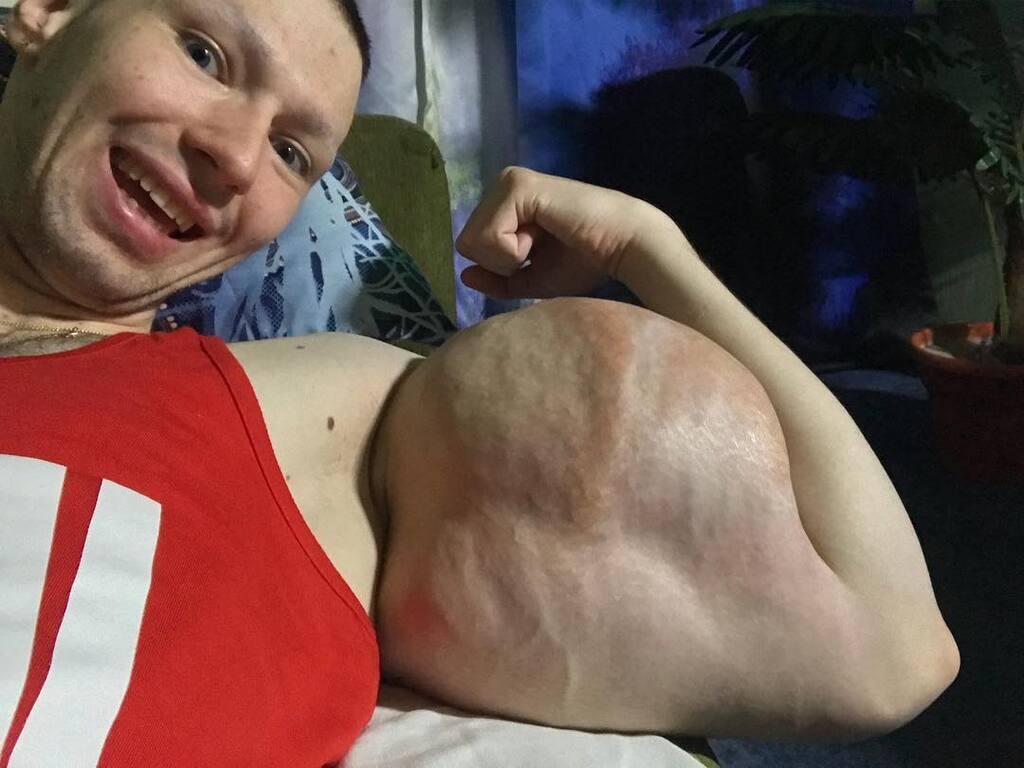 """Руки-Базуки (Кирило Терешин) """"до"""" і """"після"""" операції, фото і відео"""