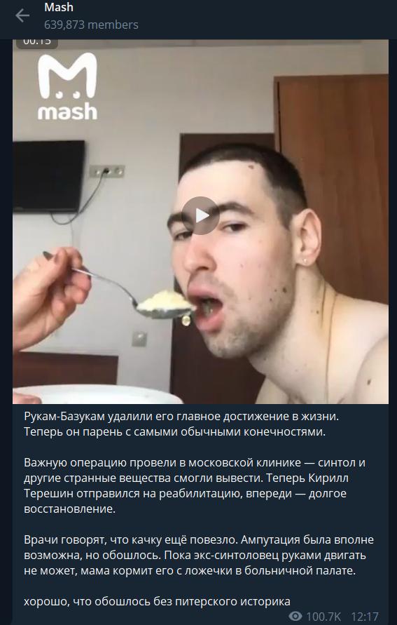 """Руки-Базуки (Кирилл Терешин) """"до"""" и """"после"""" операции, фото и видео"""