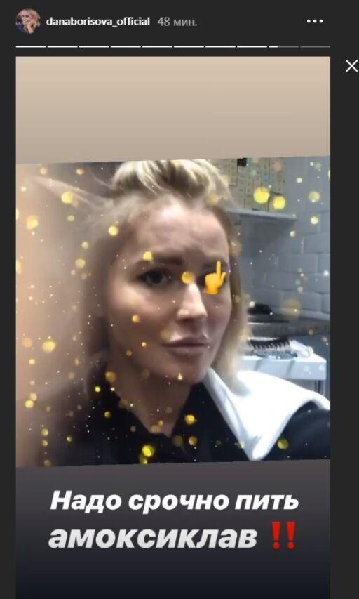 Дана Борисова сделала пластическую операцию и закричала от ужаса