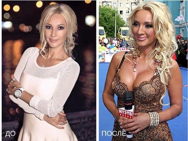 Лера Кудрявцева в больнице: ее фото до и после операции