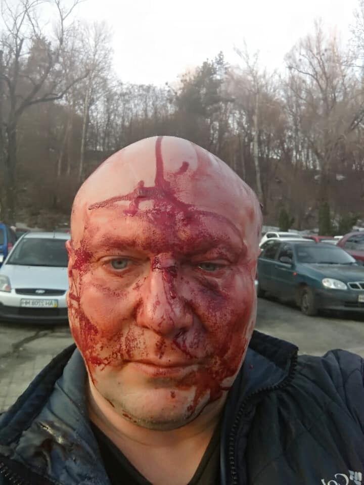 Алексей Святогор избит: кто он и за что его так, фото