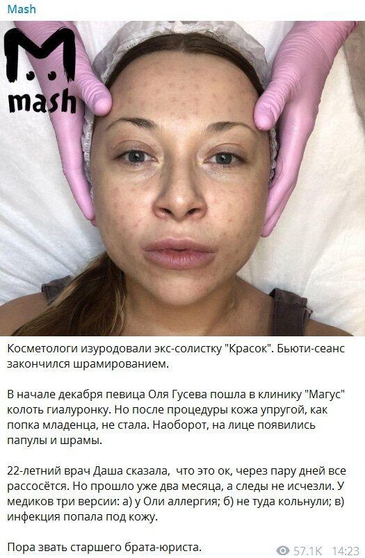 Ольга Гусева: кто она и как ее изуродовали