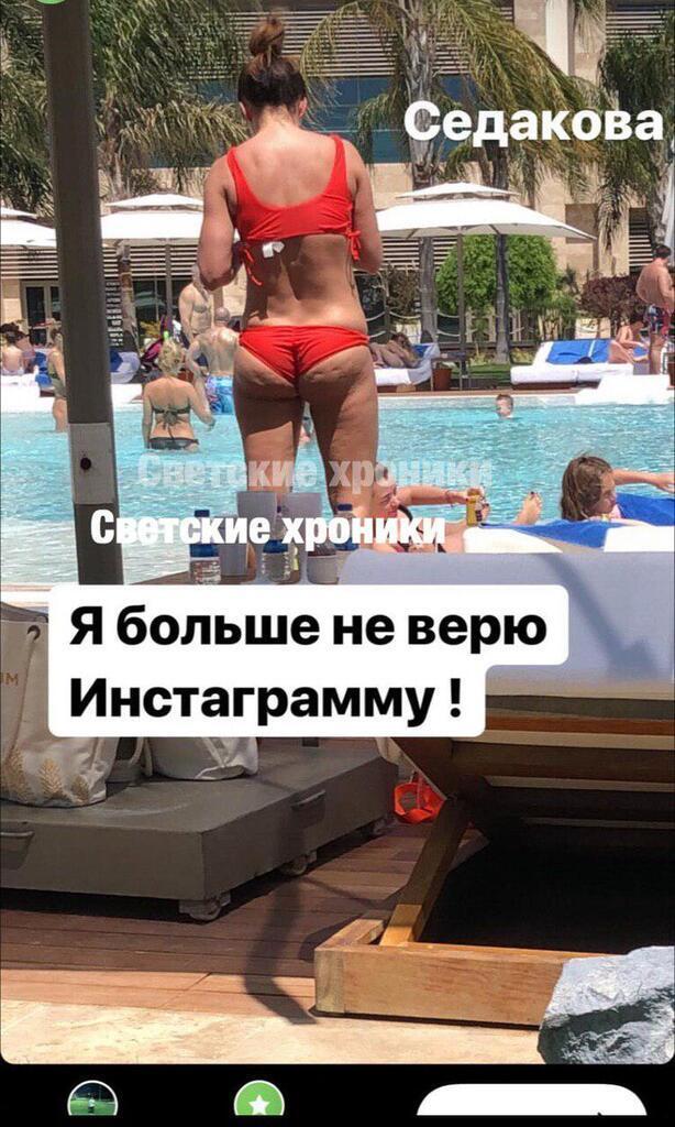 Анна Седокова жахнула справжнім фото свого інтимного місця