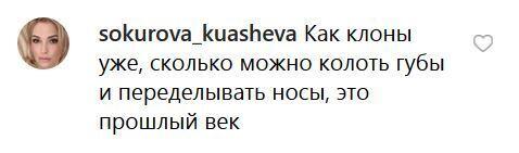 """""""Страшно дивитися"""": Седокова налякала своїм обличчям, фото"""