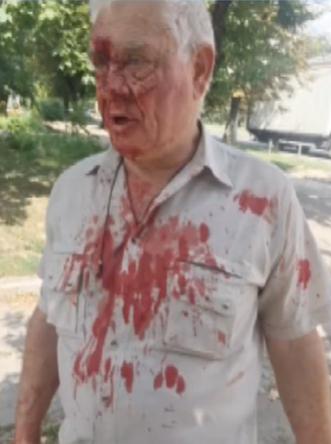 """""""Что ты, с*ка, цепляешься ко мне?!"""" Как полицейский избил пенсионера в Харькове, фото"""