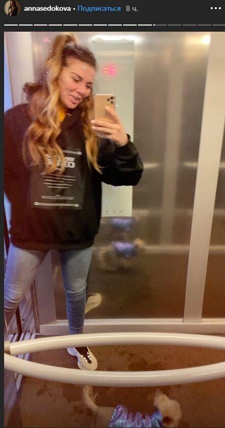 Анна Седокова беременна или нет? Что известно