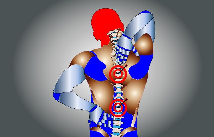 Болит спина, или давайте поговорим об остеохондрозе