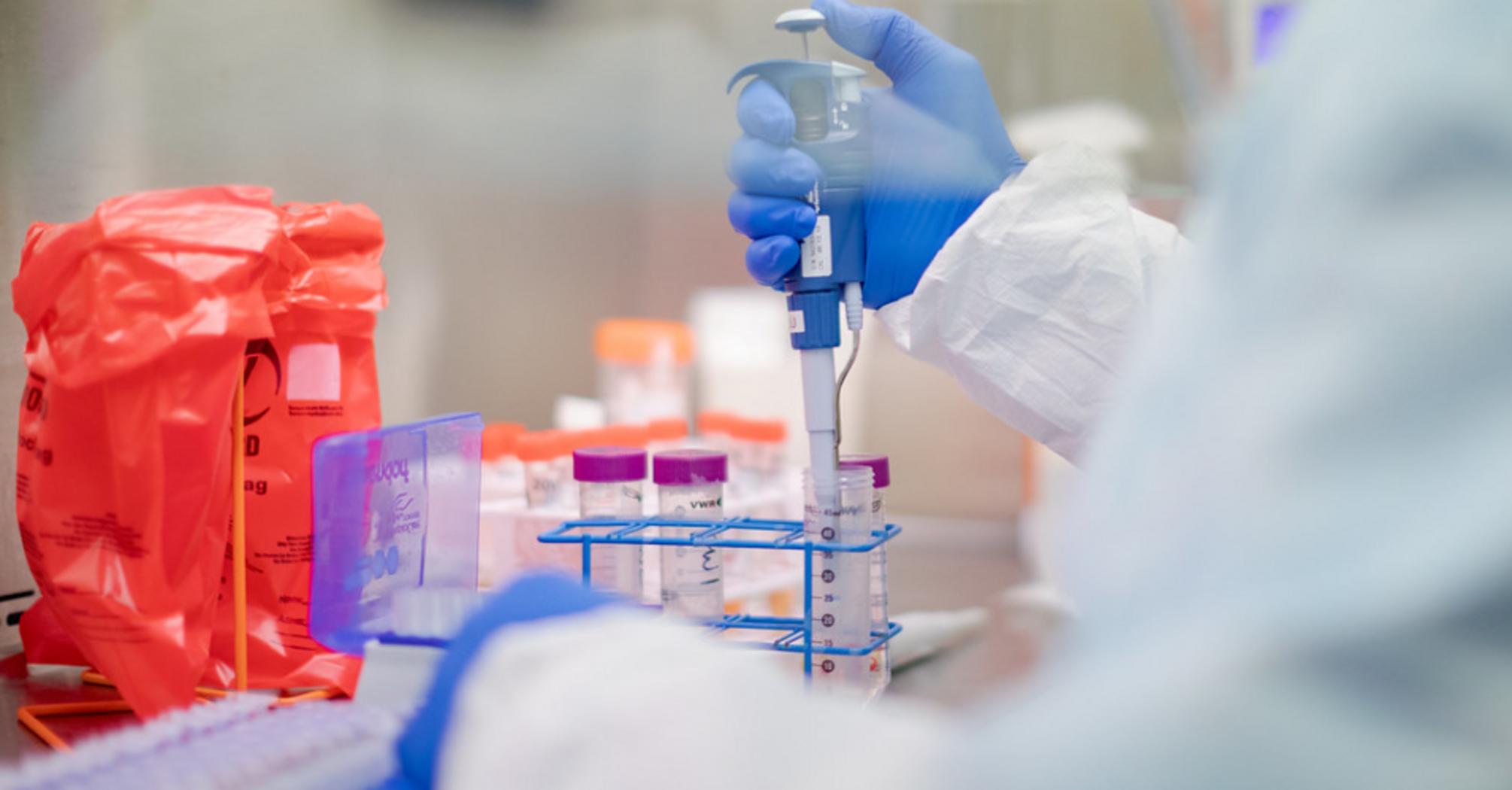 В Израиле впервые в мире вылечили от COVID-19 экспериментальным лекарством
