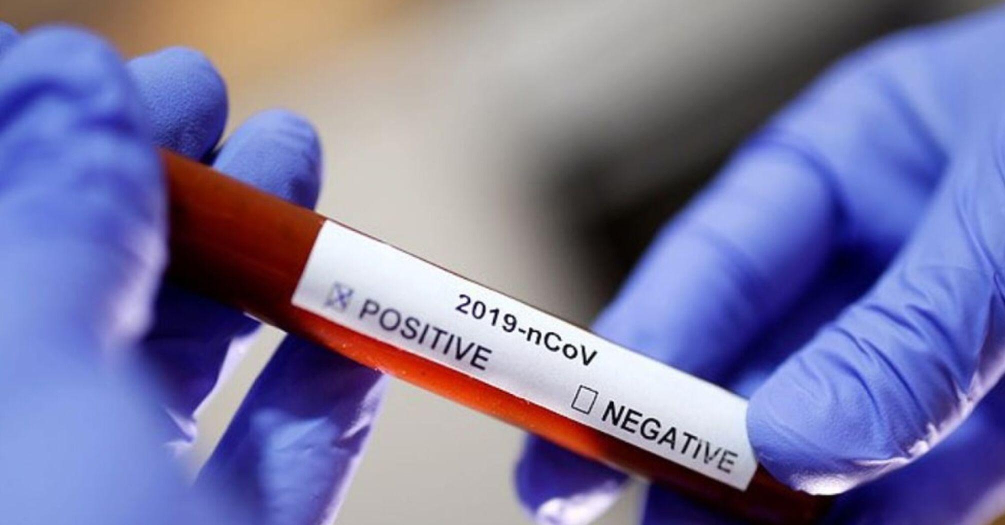 У столиці знову зростає добова кількість захворювань на коронавірус