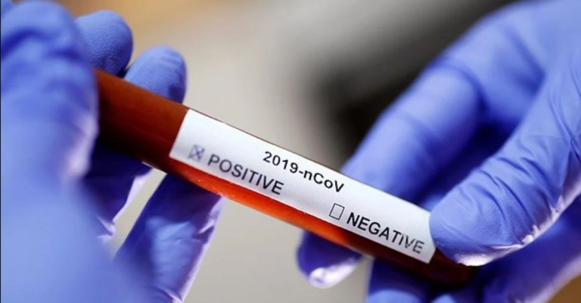 Кількість інфікованих коронавірусом у США перевіщіла 3 мільйоніКількість інфікованих коронавірусом у США перевіщіла 3 Мільйони