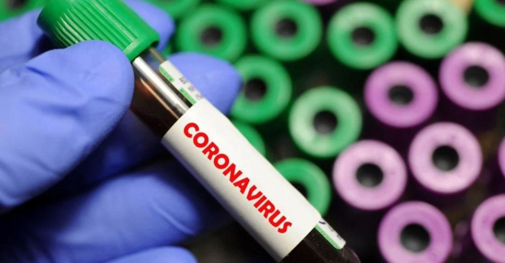 Добова захворюваність на коронавірус в Україні знову зростає