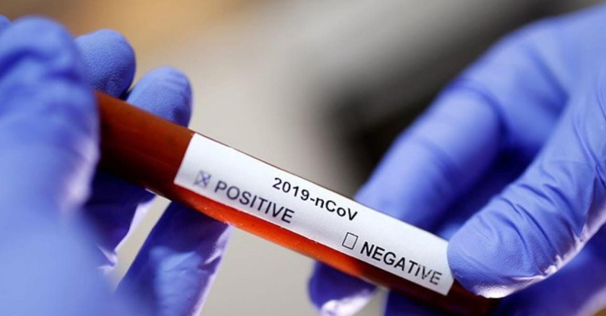 В Україні новий антирекорд із захворюваності COVID-19